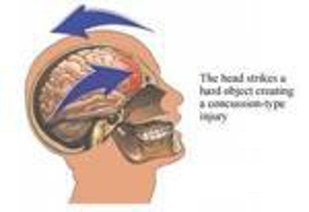 Illustration of human head and the impact of a concussion.