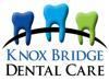 Knox bridge dental element view
